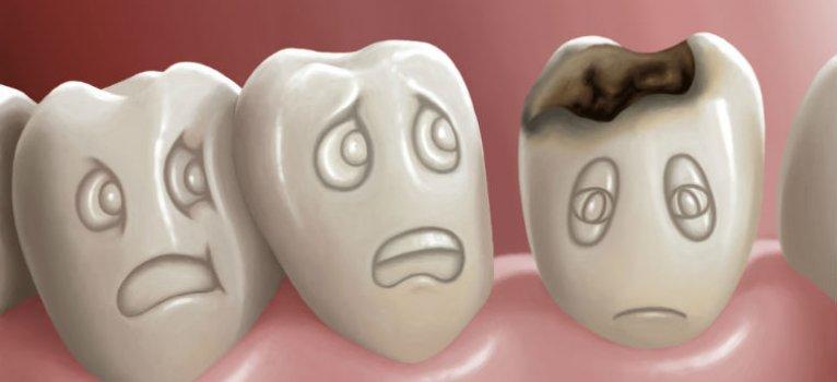 шүдний хорхой.jpg