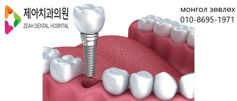 single-implant-graphic-photo.jpg