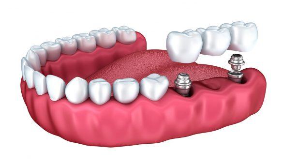 implant 3.jpg