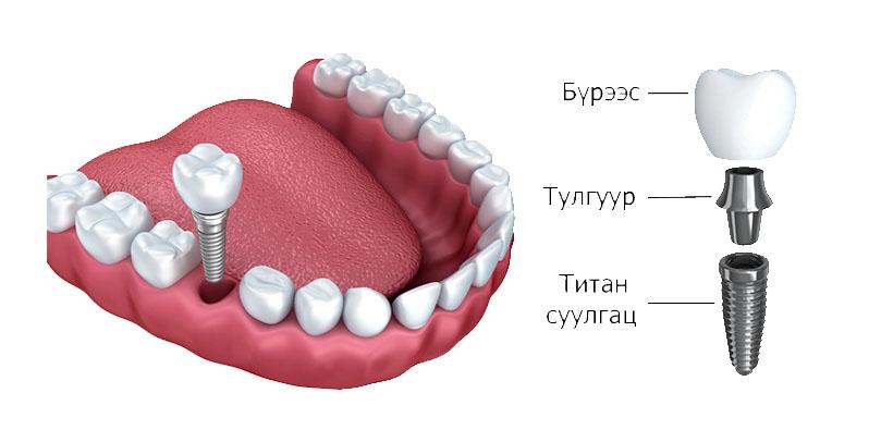 Implant11.jpg
