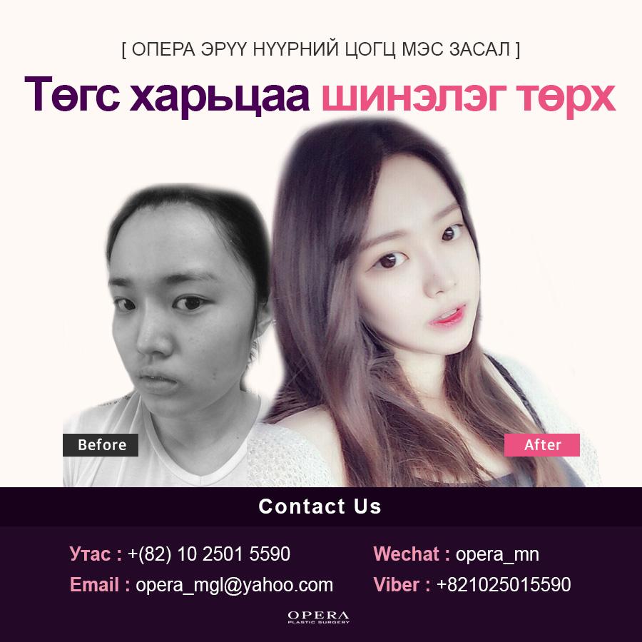 0117_전후_몽골.jpg