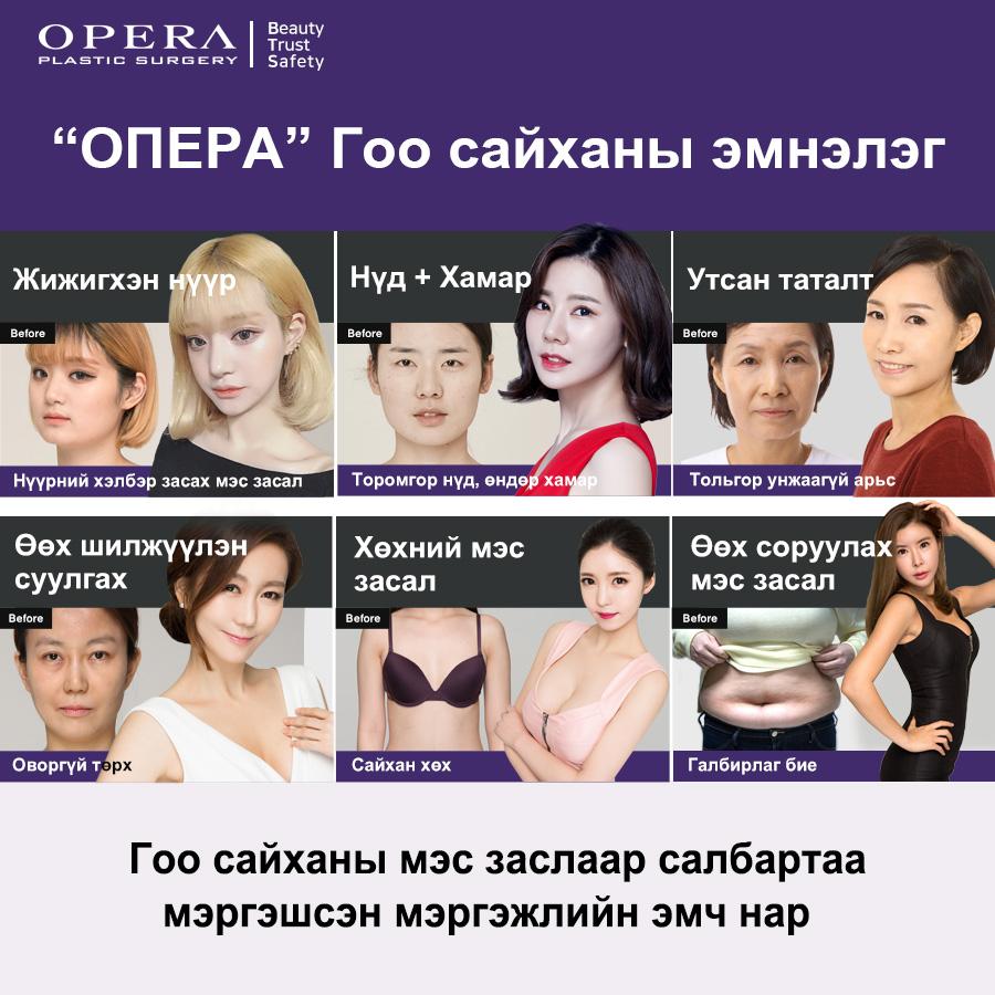 오페라배너151_몽골.jpg
